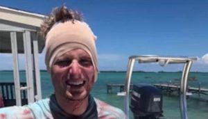 Man's Extroadinary Escape From Shark Who Took Bite Out of His Head Caught on Camera